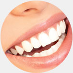 Teeth Whitening at Forest Hill Dental at 507 Eglington Ave in Toronto, Ontario